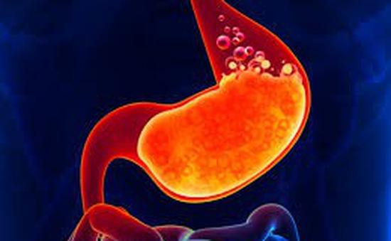 Nguyên nhân gây bệnh ngược dạ dày thực quản