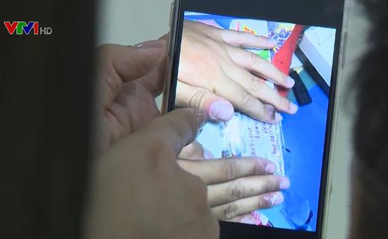 Trẻ suýt hỏng 10 ngón tay vì đồ chơi Slime