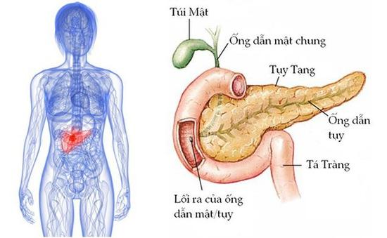 Ung thư tuyến tụy nguy hiểm mức độ nào?