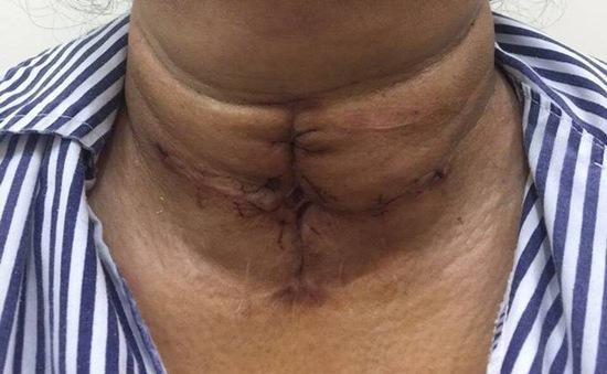 Khối u tuyến giáp khổng lồ chít hẹp khí quản người phụ nữ