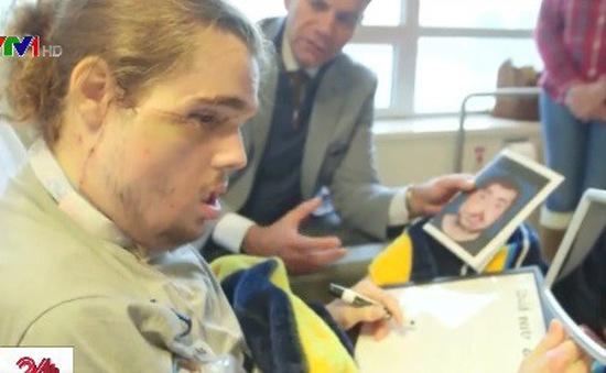 Ca phẫu thuật ghép mặt đáng kinh ngạc tại Mỹ