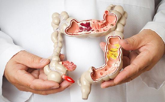 Tầm soát ung thư đường tiêu hóa