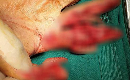 Dập nát bàn tay do máy thái thịt