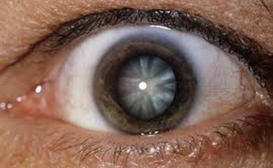 Đục thủy tinh thể: nguyên nhân hàng đầu gây mù lòa