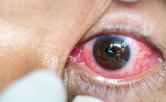 Nguy cơ nhiễm trùng mắt nghiêm trọng từ kính áp tròng