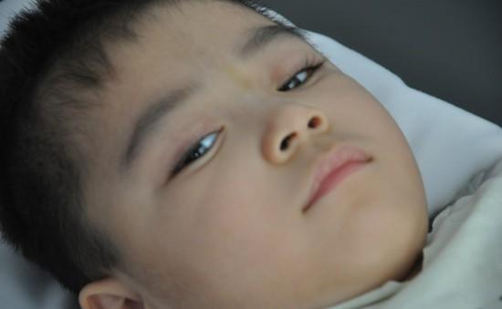 Ánh mắt cầu cứu sự sống của bé 3 tuổi bị viêm não