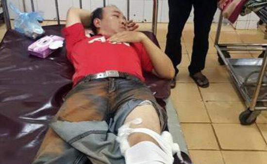 Đắk Nông: Ngăn chặn xe chở gỗ trái phép, một cán bộ kiểm lâm bị thương nặng