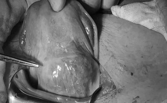 Cần Thơ: Phẫu thuật bảo tồn tử cung thành công cho thai phụ bị thai bám sẹo mổ cũ