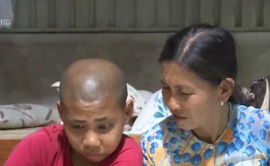 Người mẹ 17 năm cưu mang con nuôi mắc bệnh u não