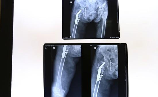 Phẫu thuật gãy mấu chuyển xương đùi phải cho cụ bà 105 tuổi