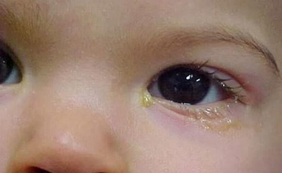 Đổ ghèn mắt - Dấu hiệu nhỏ chớ coi thường