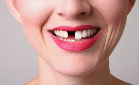Răng vĩnh viễn mất rồi có mọc lại được không?
