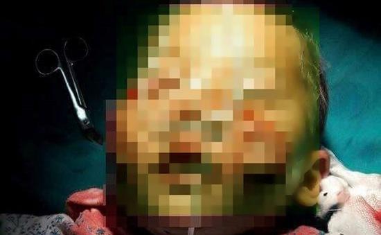 Lào Cai: Bé trai bị chó cắn nát mặt