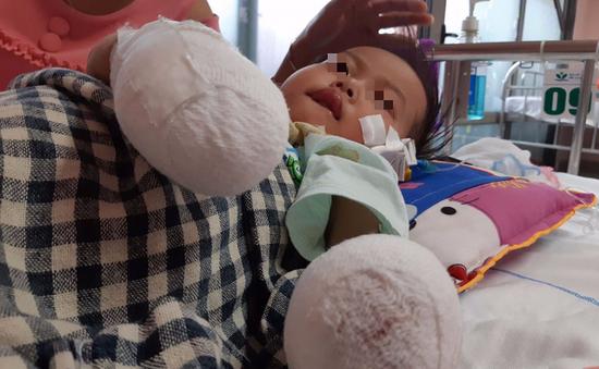 Sau một cơn sốt: Bé gái 3 tuổi bị hoại tử tay, chân