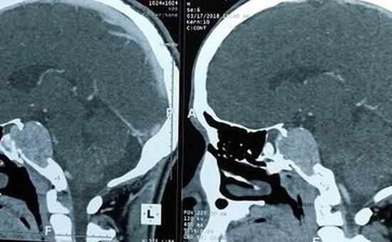 Nội soi qua mũi loại bỏ u não cho bệnh nhân