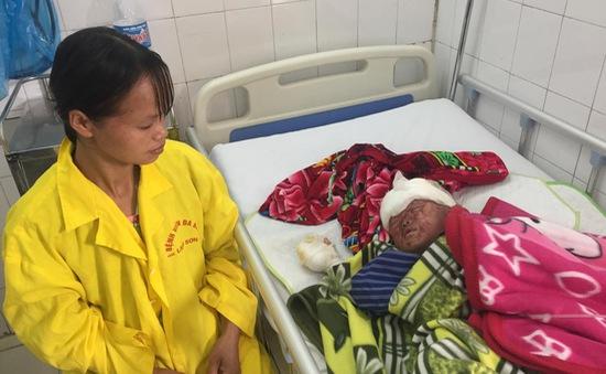 Đáng thương bé trai 4 tuổi bị bỏng nặng do cháy nhà