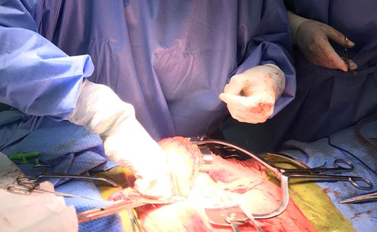 Một bệnh viện tuyến quận mổ thành công u đầu tụy