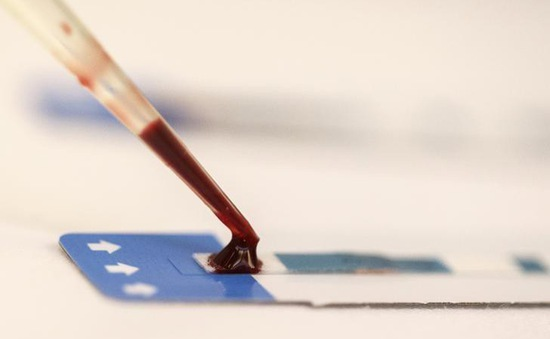 Giới khoa học cảnh báo tình trạng ký sinh trùng sốt rét tồn tại trong máu dự trữ ở châu Phi