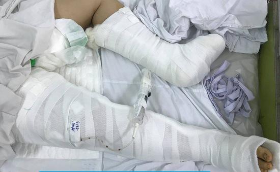 Ngã từ lầu 3, bé gái chấn thương nặng