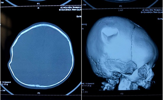 Ngã từ giường xuống đất, bé 9 tháng tuổi lún sọ não