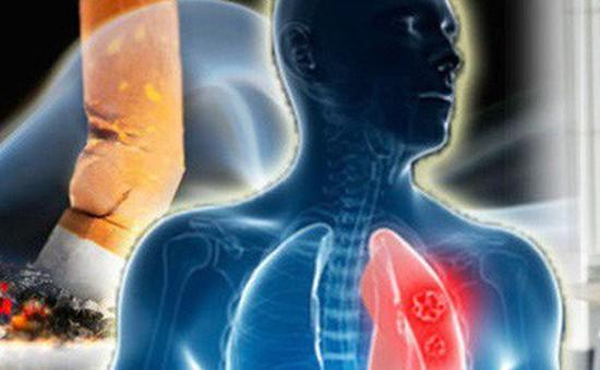 Cảnh báo: Tỷ lệ mắc mới ung thư ở nam giới gia tăng nhanh