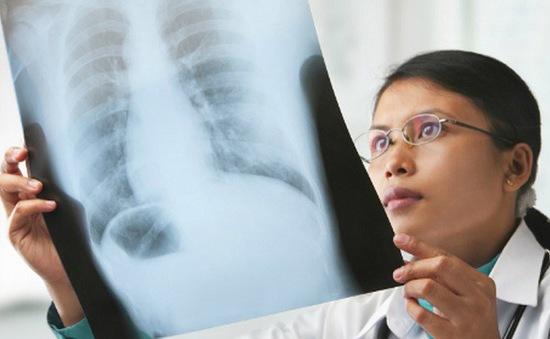 Chẩn đoán sớm ung thư phổi