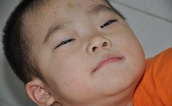Sặc cháo, bé 3 tuổi bị tổn thương não trầm trọng