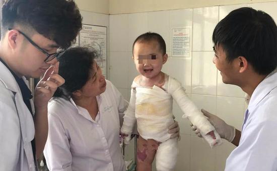 Quảng Ninh: Bé gái 4 tuổi bị bỏng nước sôi toàn thân hồi phục tốt