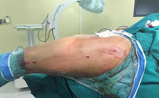 Phương pháp kết xương kín đóng đinh nội tủy