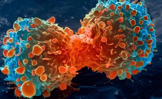 Phương pháp đột phá mới ngăn chặn hiệu quả tế bào ung thư