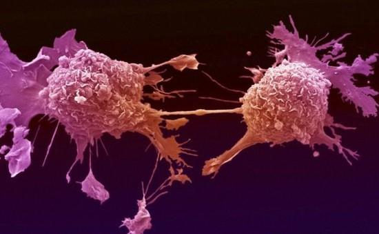 Nga tìm ra cách thức tiêu diệt tế bào ung thư