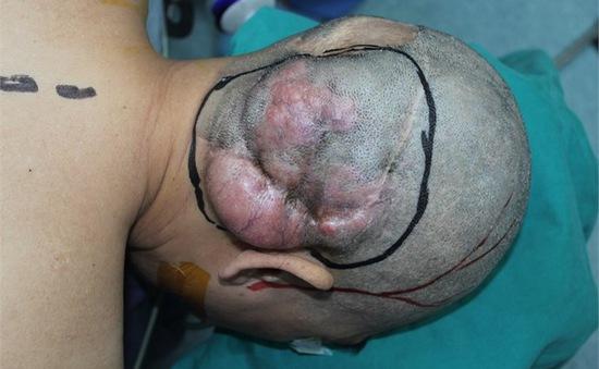Phối hợp liên khoa phẫu thuật thành công khối u vùng chẩm hiếm gặp