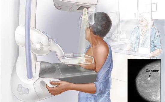 Chụp mammogram để phát hiện ung thư vú sớm