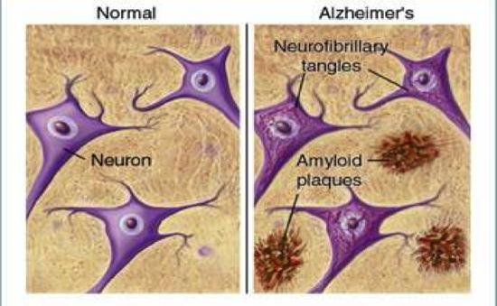Tìm ra cách phát hiện Alzheimer trước 15 năm