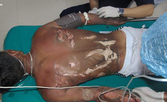 Cấp cứu cho bệnh nhân bị bỏng xăng nguy kịch tính mạng