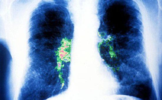 Trung Quốc công bố bước tiến mới trong điều trị bệnh viêm phổi