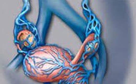 Những tác hại của giãn tĩnh mạch thừng tinh đối với nam giới
