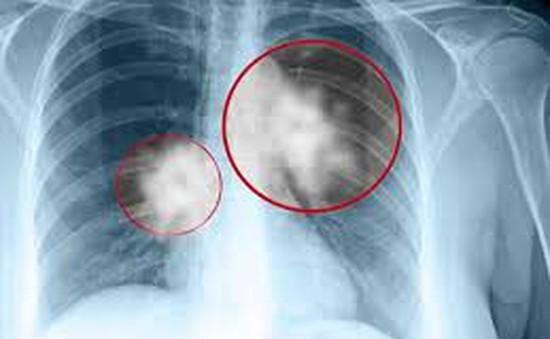 Xét nghiệm DNA giúp chống lại bệnh lao ở Madagascar