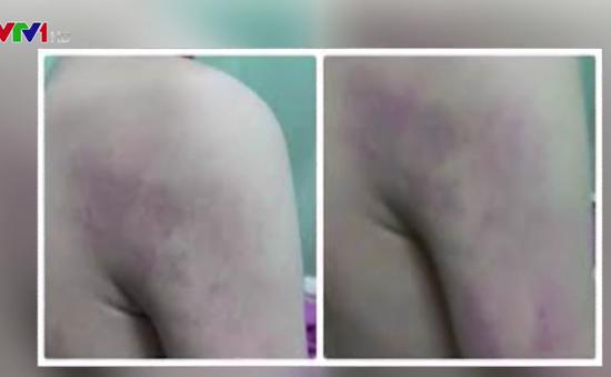 Học sinh lớp 1 ở Hà Nội bị cô giáo đánh tím người
