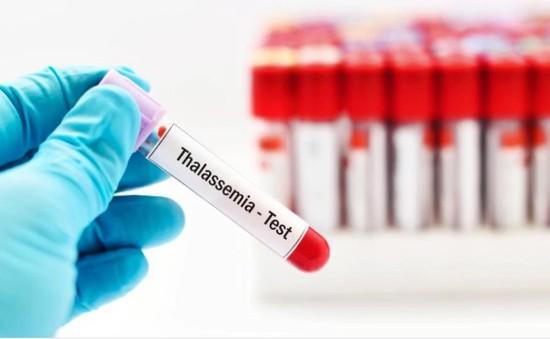 Nâng cao chất lượng xét nghiệm và sàng lọc bệnh tan máu bẩm sinh