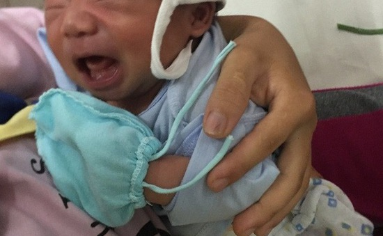 Thương bé 20 ngày tuổi thân hình tím tái vì bệnh tim bẩm sinh
