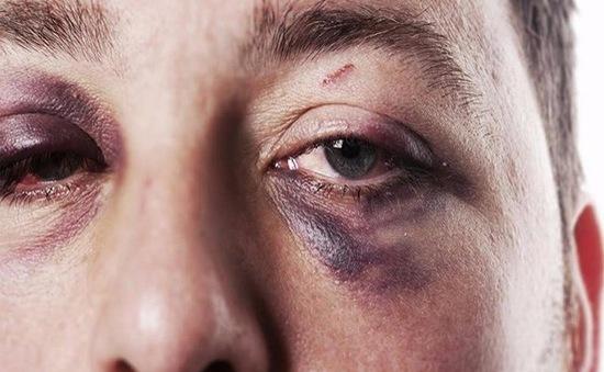 Tổn thương hốc mắt: Triệu chứng, điều trị và phục hồi