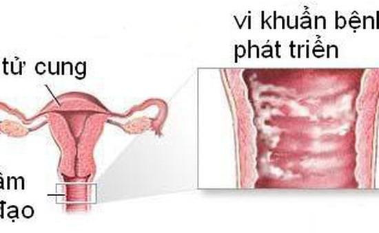 Hầu hết phụ nữ mắc bệnh nhiễm khuẩn âm đạo