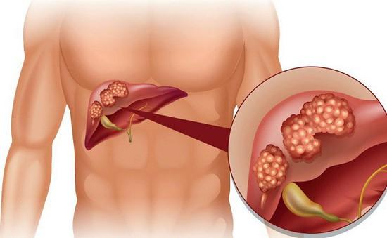Việt Nam có tỷ lệ mắc ung thư gan cao thứ 5 thế giới