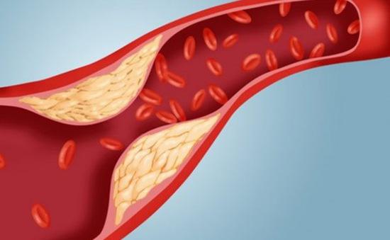 Điểm mặt các nguyên nhân gây tăng mỡ máu