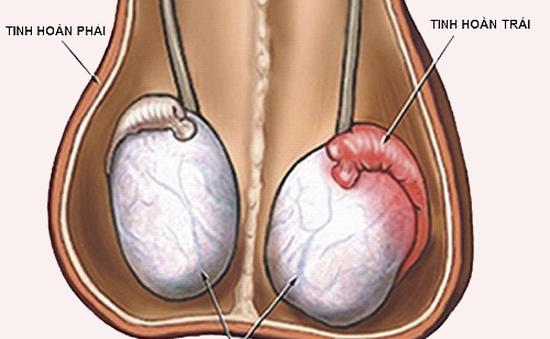 Viêm tuyến tiền liệt ở nam giới có thể gây vô sinh