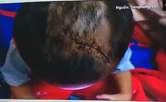 Bình Dương: Điều tra vụ bé trai 3 tuổi nghi bị bạo hành