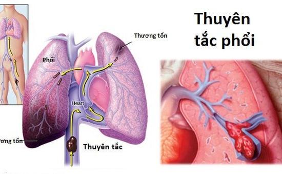 Thuyên tắc phổi - Bệnh do nằm bất động quá lâu có thể gây tử vong