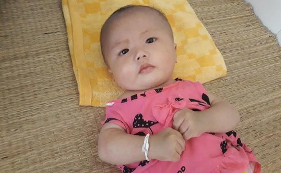 Nghẹn ngào bé gái bị bỏ rơi mang nhiều bệnh tật
