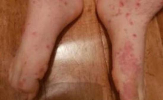 Ca mắc bệnh đậu mùa đầu tiên trong hơn 10 năm do bị bê cắn